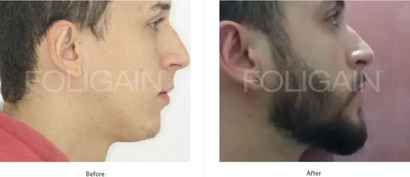 FOLIGAIN MINOXIDIL 5% HAIR REGROWTH TREATMENT For Men 3 Month Supply