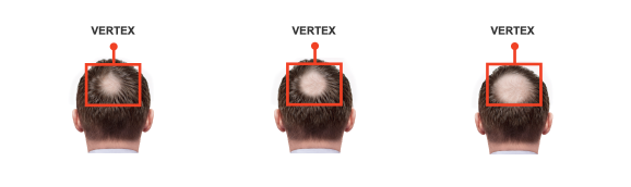 Vitamine di hertz di dopel per capelli il prezzo
